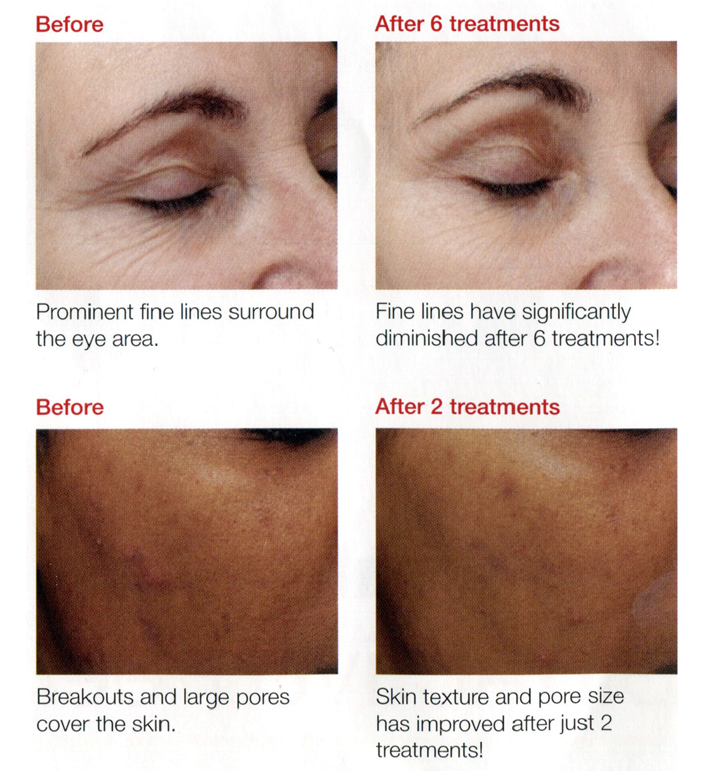 Dermalogical Biosurface Peel